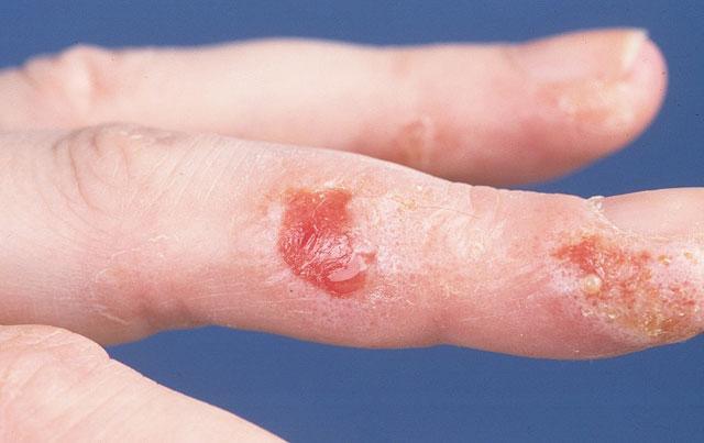afbeelding schimmelinfectie huid