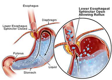 maagzuur slokdarm pijn